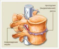 Форум лечение артрита народными средствами